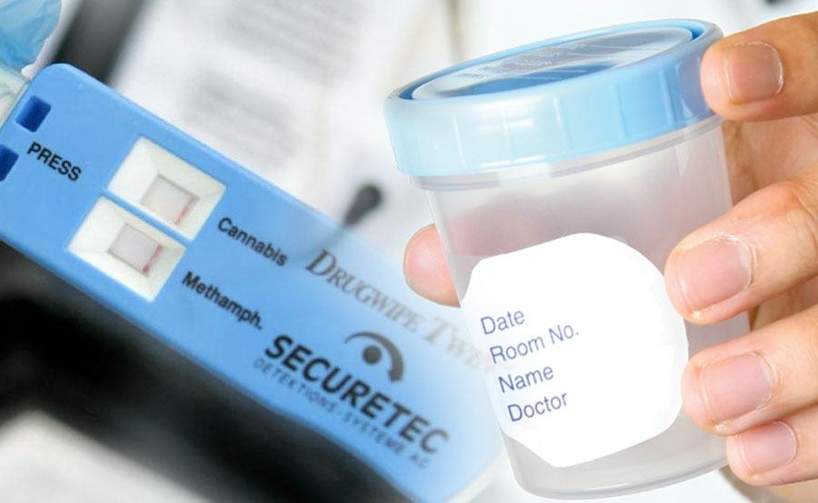 test de drogas